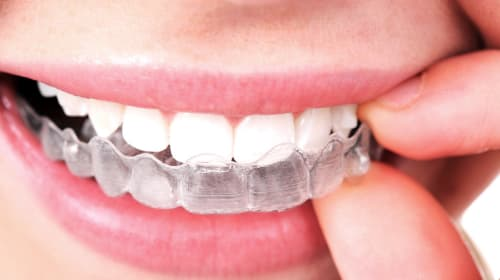 Top 6 Benefits of Invisalign