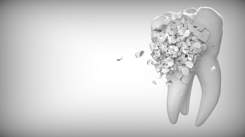 Teeth Bleaching and Whitening: How To Protect Your Teeth Enamel