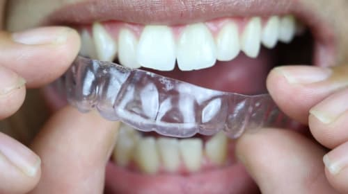Teeth Aligners - Everything Your Need To Know