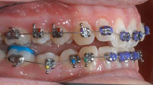 The Best Kind Of Dentists: Braces Near Me