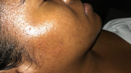 I Have Post-Inflammatory Hyperpigmentation and Here is How I Live With It