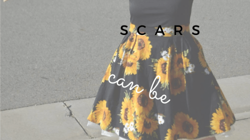 Not All Scars Can Be Seen