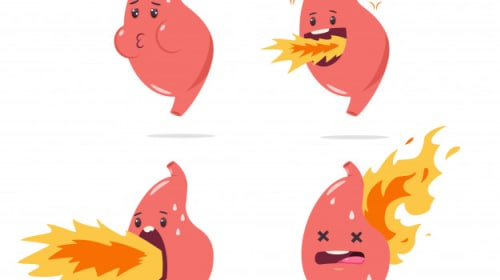 What Are the Distinctions Between Heartburn, Acid Reflux, and GERD?