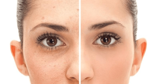 HOME REMEDIES FOR PIGMENTATION (HOW TO REMOVE DARK SPOTS)