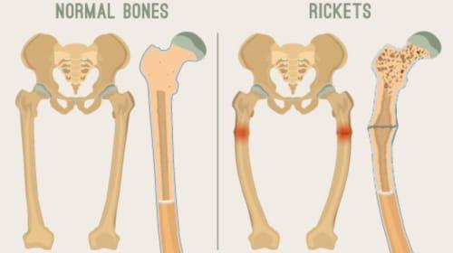 Rickets: Symptoms, Risk Factors and Treatment