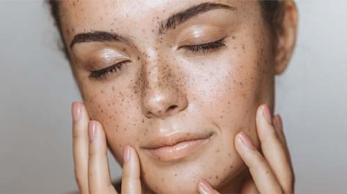 How To Manage Combination Skin?