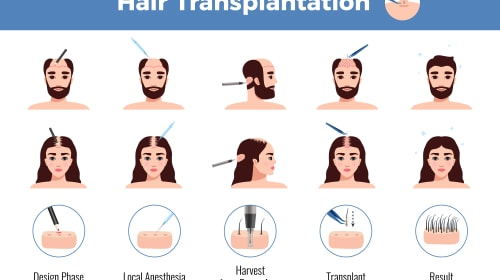 Regain Your Confidence with Hair Transplant Surgery