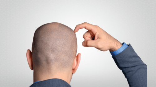 Is Hair Transplant expensive in Mumbai?