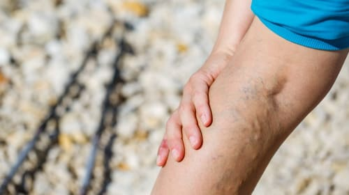 7 Most Common Misconceptions About Varicose Veins