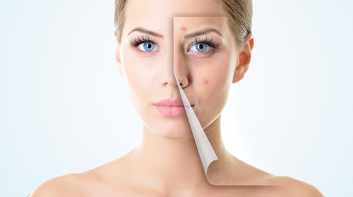Botox Vs Fillers: What's the Different between two Procedures