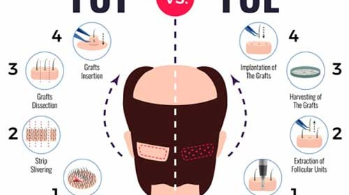 Different Hair Transplant techniques Available