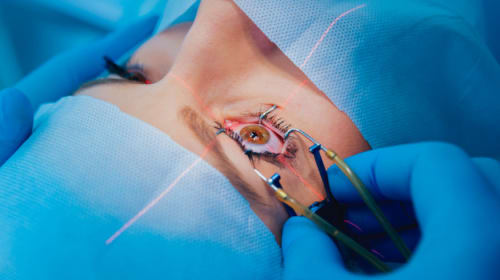 Can I Go For Swimming After LASIK Eye Surgery?