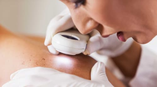 Why You Should Visit A Dermatologist At Least Once A Year