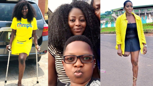 Meet The Beautiful Nollywood Actress Who Lost One Of Her Legs.