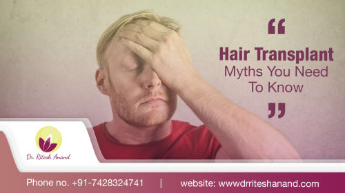 Hair Transplant Myths You Need To Know