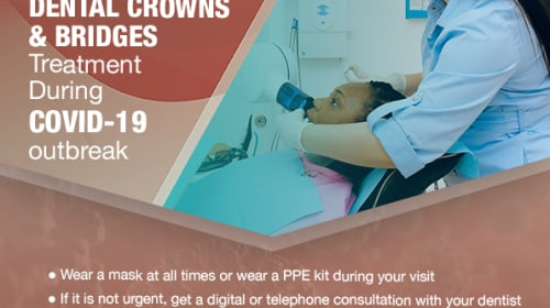 IMPACT OF COVID 19 ON DENTAL CROWNS AND BRIDGES TREATMENT
