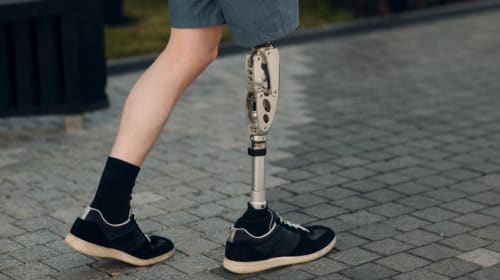 Prosthetic Legs Don't Need to Be Ugly
