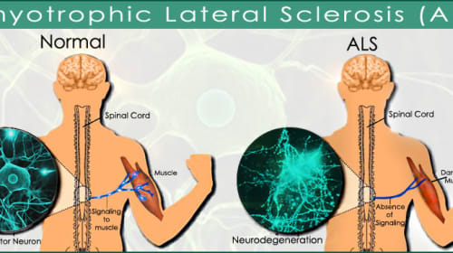 Therapies for Amyotrophic Lateral Sclerosis (ALS)