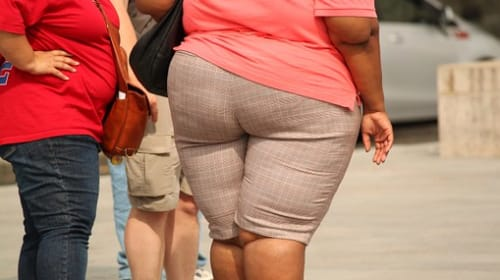 The Possible Causes of Obesity