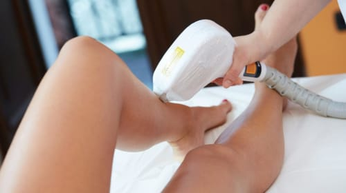 Top 10 Benefits of Laser Hair Removal