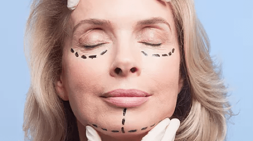 Should You Get a Facelift?