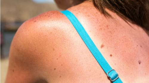 Sunscreen Enables the Patriarchy