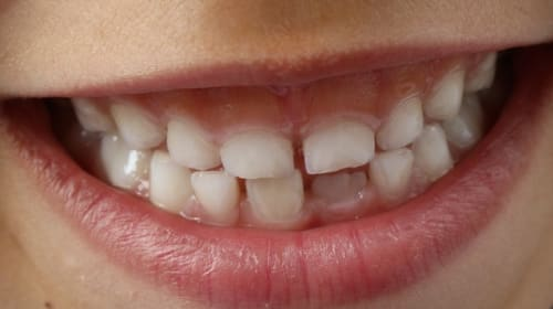 Does Whitening Damage Your Teeth?