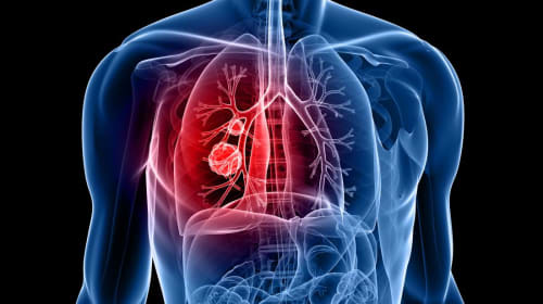 Early Signs and Symptoms of Lung Cancer You Need to Know