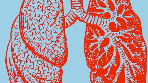 Is Smoking Marijuana Damaging Your Lungs?