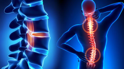 Posture and Spine Pain