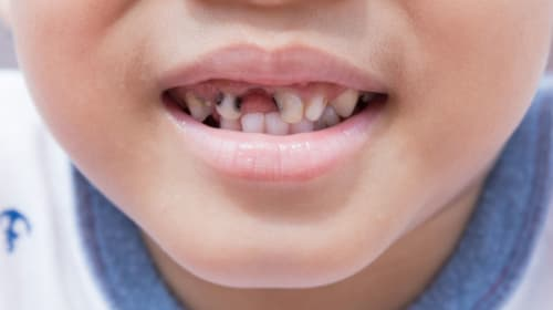 6 Effects of Aerated Drinks on Kids' Teeth