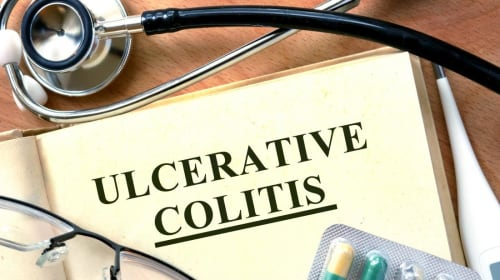 Ulcerative Colitis (UC) Is a Scam Diagnosis - Here's My Story