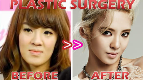 K-Pop's Plastic Surgery Influence on Teens and Young Adults