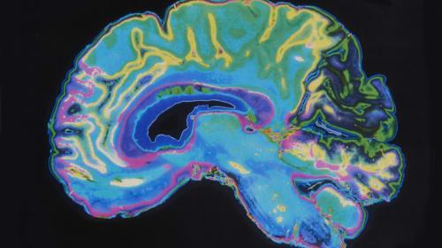 Information on Schizophrenia and Paranoia