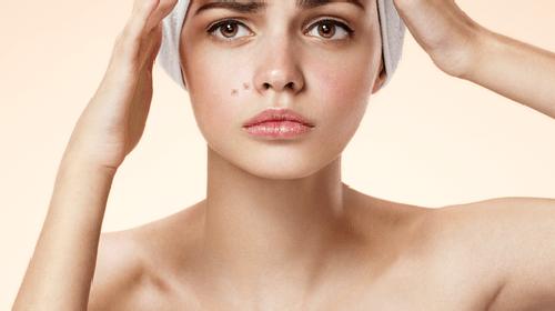 Main Skin Problem: Acne
