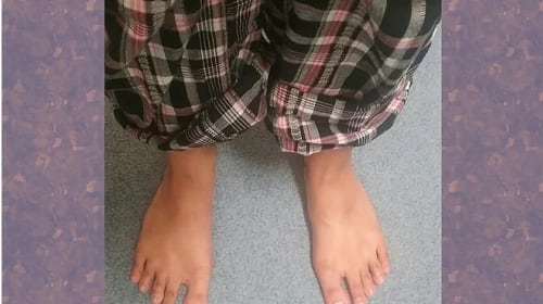 What to Do if You Have Flat Feet?