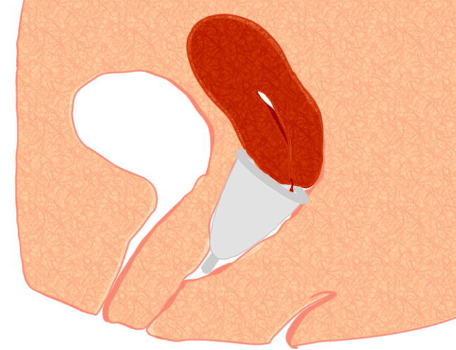 Menstrual cup inserted and placed underneath the cervix