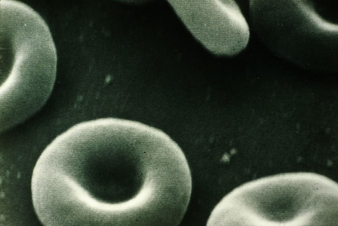 black and white blood cells