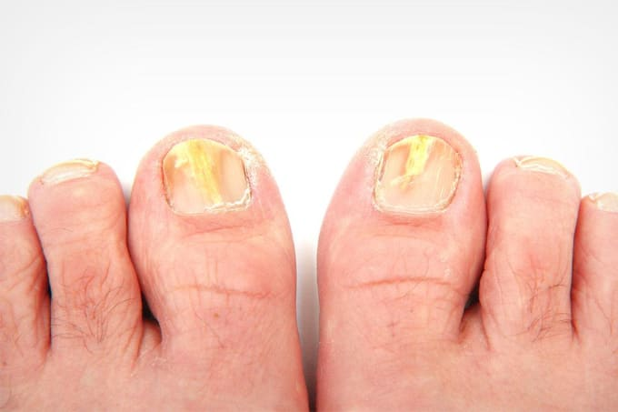 No More Fungus, at Least on Your Toenail | Longevity