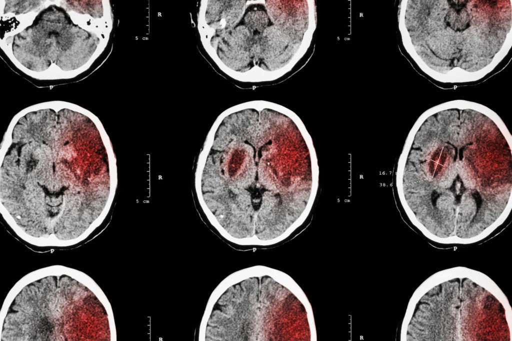 Being a Victim to a TBI