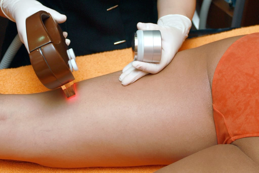 How Do You Prepare for Laser Hair Removal