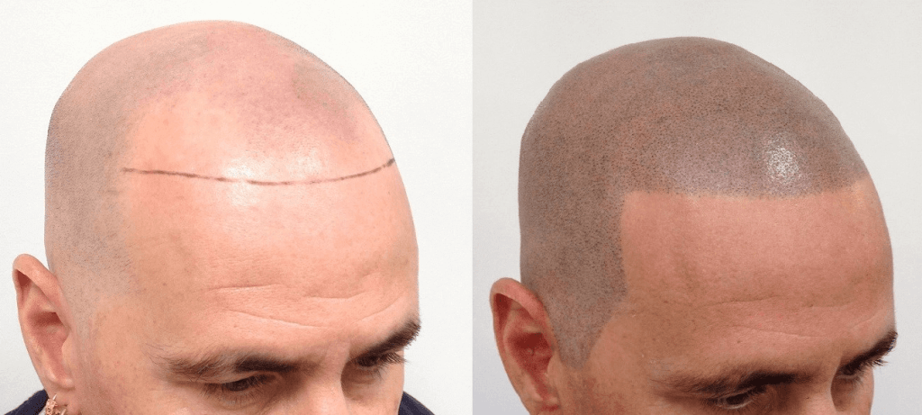 Scalp Micropigmentation- Implant Pigment Into The Scalp For Hairs