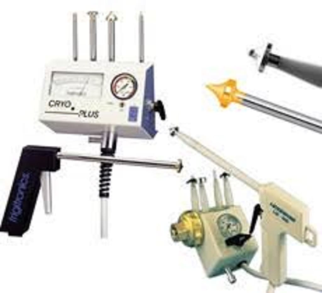 Cryosurgical Equipment Market: Development History Growing Technological Advancements And Business Analysis Develop By 2028