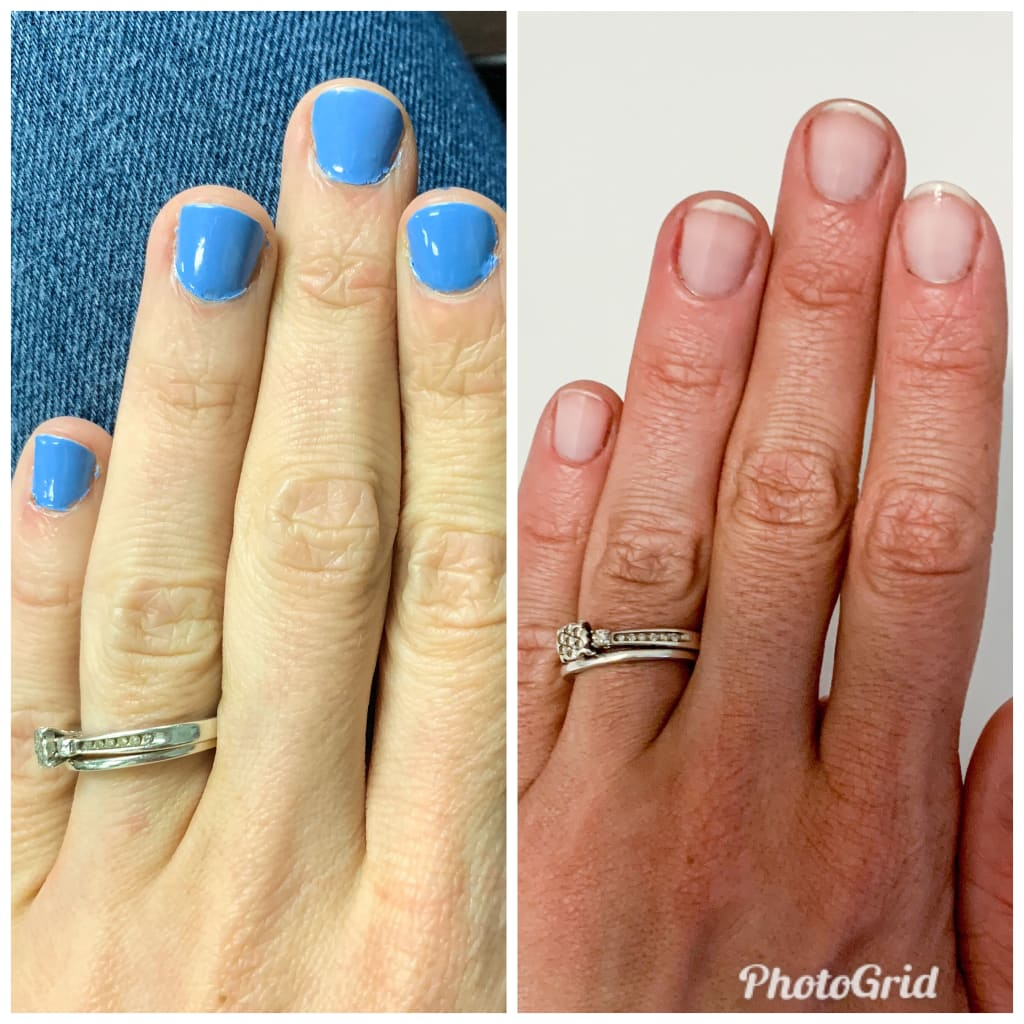 Is It in the Genes, or Does Your Nail Care Routine Need Help?