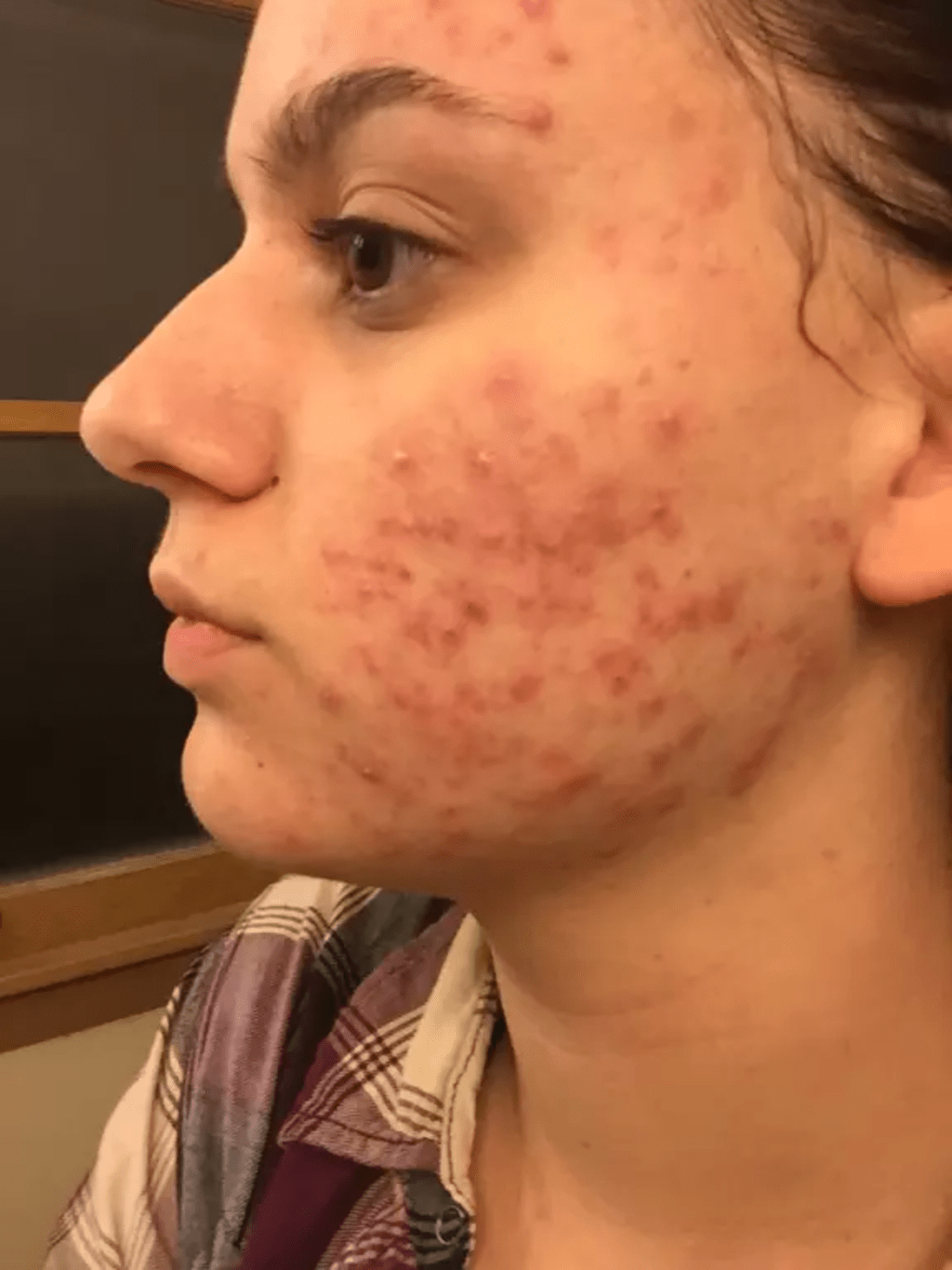 5 Things I Ve Learned From Living With Cystic Acne