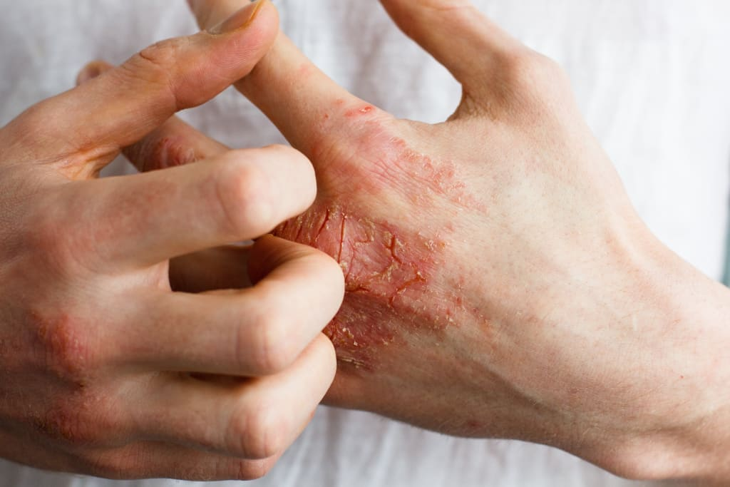 10 Science-Backed Ways to Help Prevent Eczema Flare-Ups