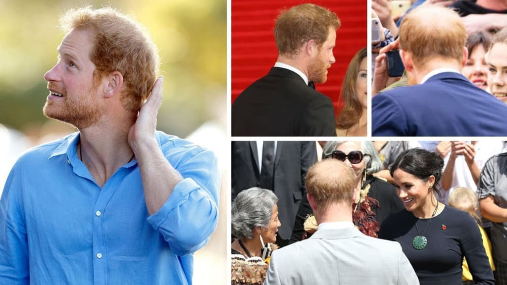 Prince Harry's Bald Spot Has Doubled in Size in Just One Year