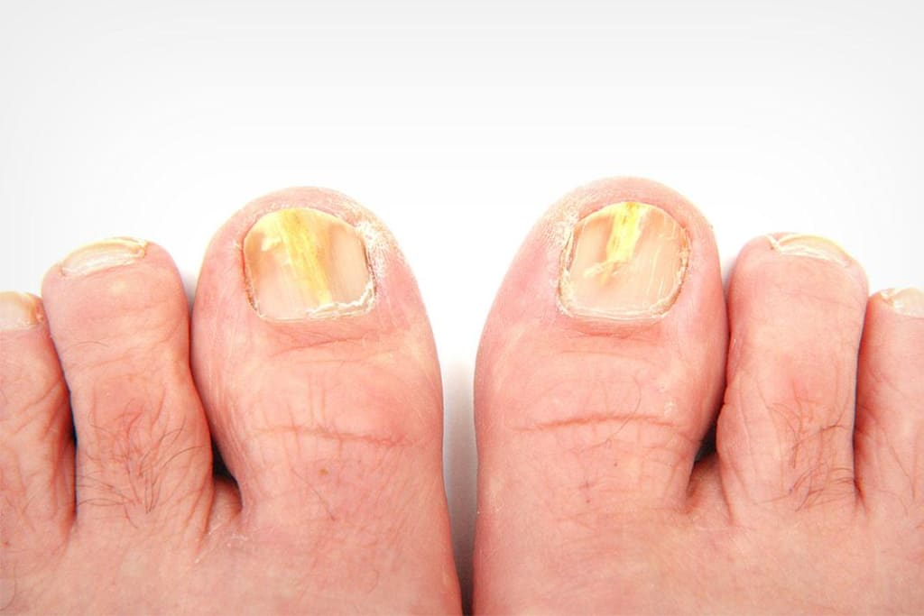 No More Fungus, at Least on Your Toenail
