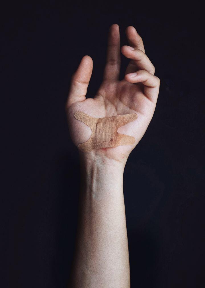 Lifehacks for Removing Splinters