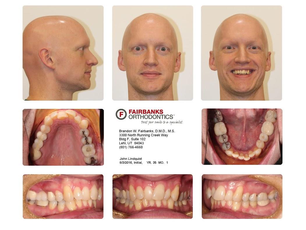Teeth before invisalign